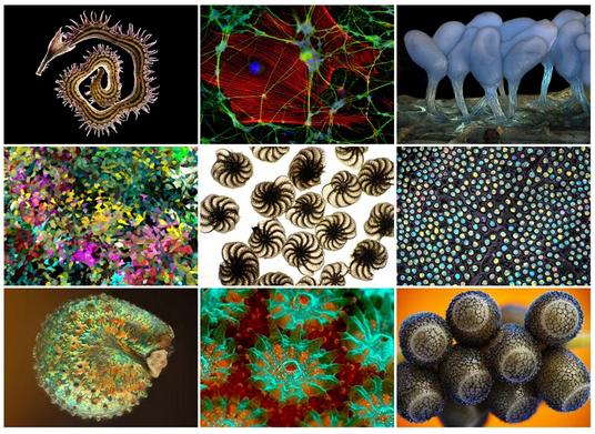 Под микроскопом,фотографии победителей конкурса «2012 Wellcome Image Awards», которые изменят ваше представление о нашем мире.