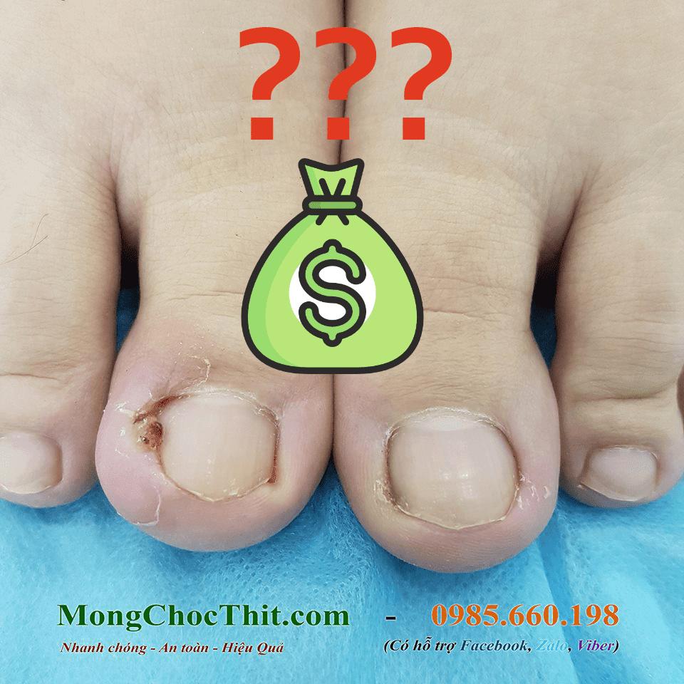 Chi phí tiểu phẫu điều trị móng chọc thịt là bao nhiêu