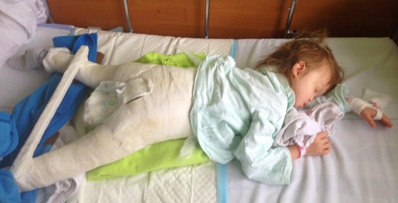 Po operacji biodra
