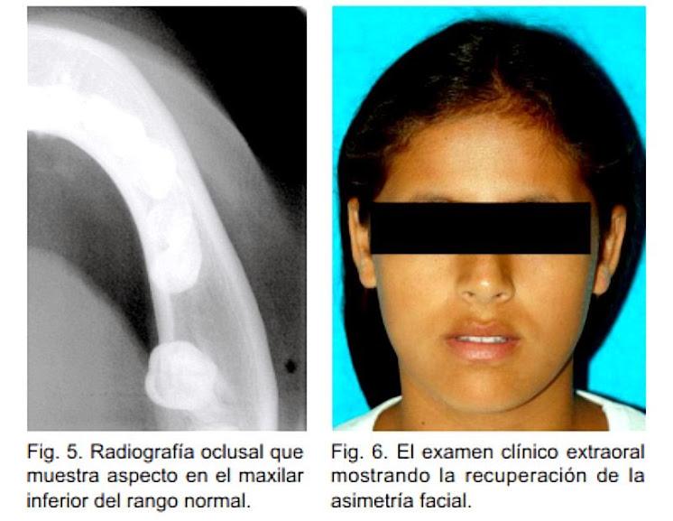 osteomielitis-cronica