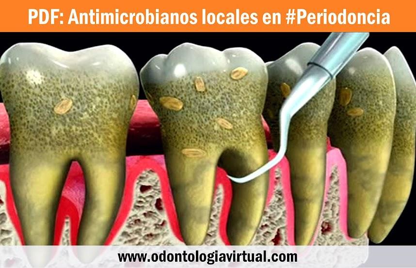 antimicrobianos-periodoncia