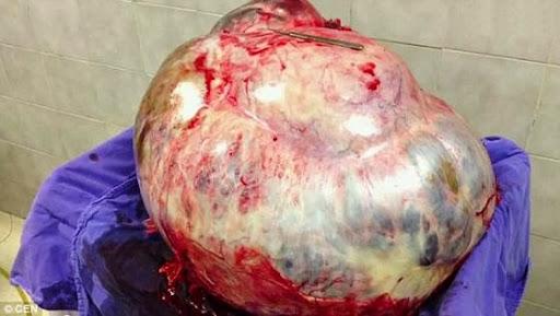 墨婦「懷孕」60公斤腫瘤5年不看醫生