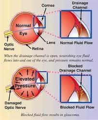 Obat  Herbal Glaukoma Akut