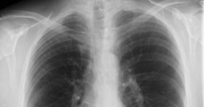 Varjostuma Keuhkokuvassa