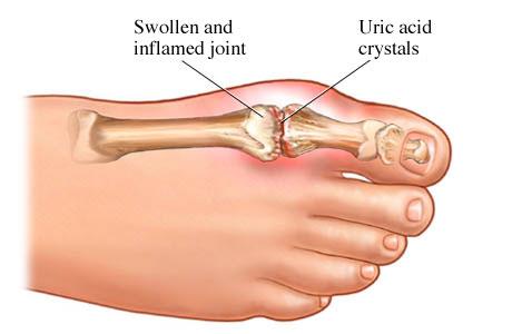 Подагра наросты на костях  лечение народными средствами