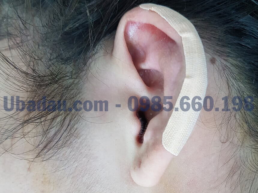 phẫu thuật u sụn vành tai