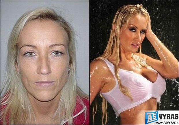 Plastikos chirurgo žmona prieš ir po operacijų