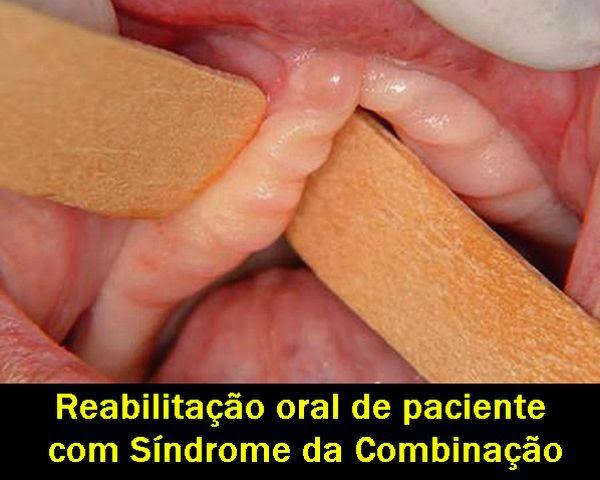 Sindrome-Combinação