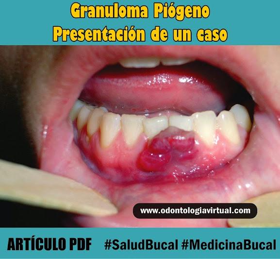 granuloma-piogeno
