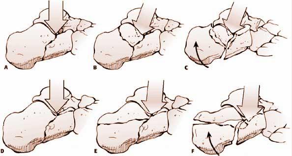 跟骨骨折(calcaneal fracture)-lh4.googleusercontent.com