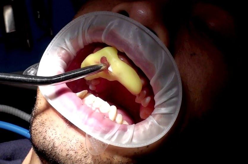 Cerec-Guide-Surgery