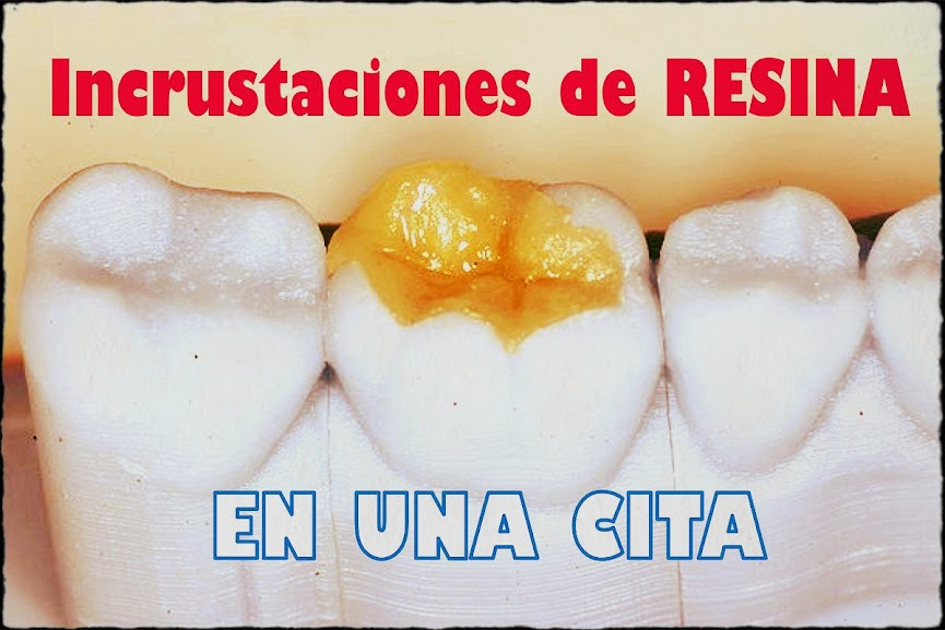 Incrustacion-dental