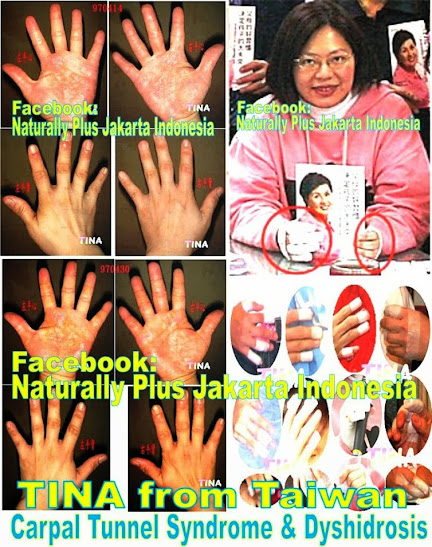 np+carpal Pengobatan Flu Singapore