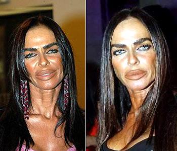famosos cirugia estetica retoques operaciones botox