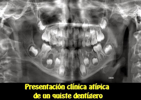 quiste-dentigero