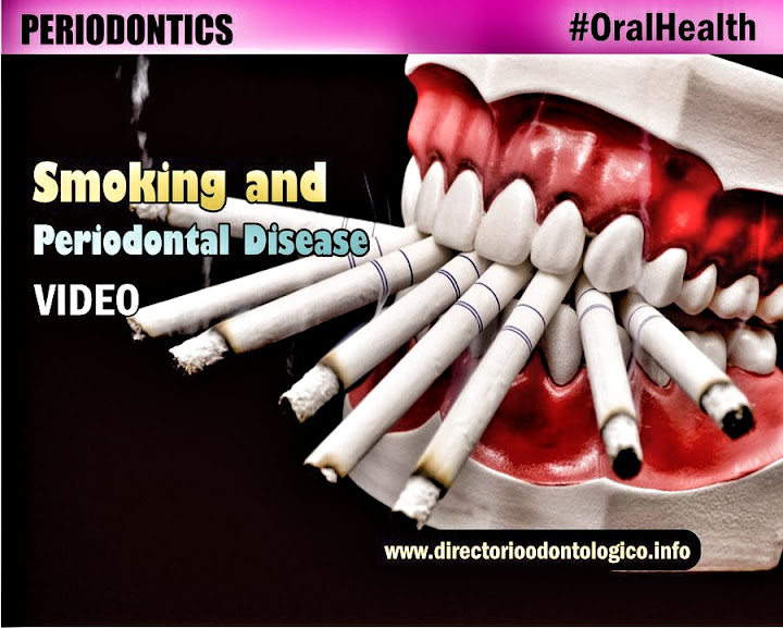 smoking-periodontal-disease