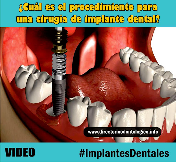 implante-dental