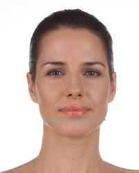 largura do maxilar