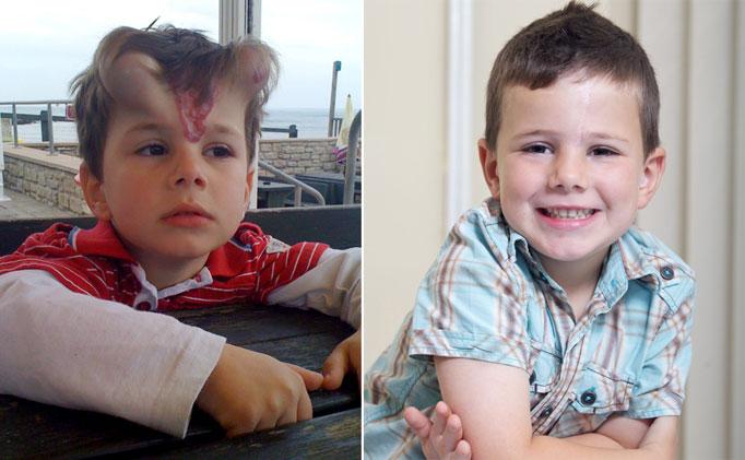 3. - Menino recebeu implantes parecidos com chifres para remover marca de nascimento
