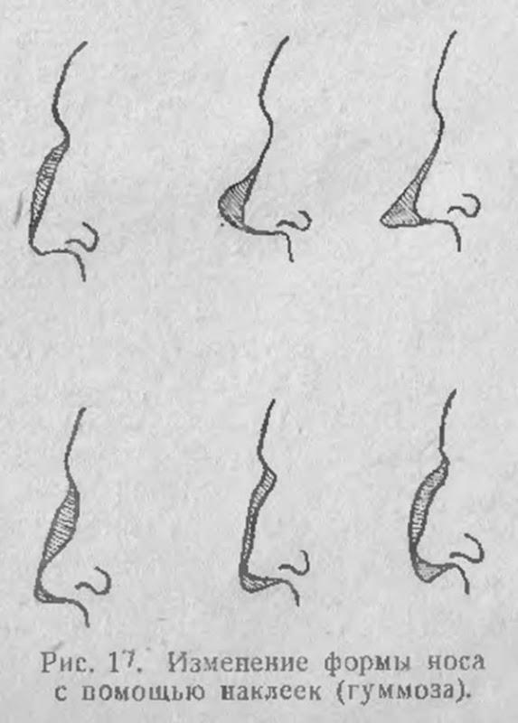Изменение формы носа с помощью