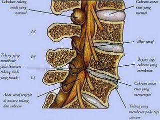 tulang4 Obat Herbal Alternatif Penyembuhan Penyakit Saraf Terjepit