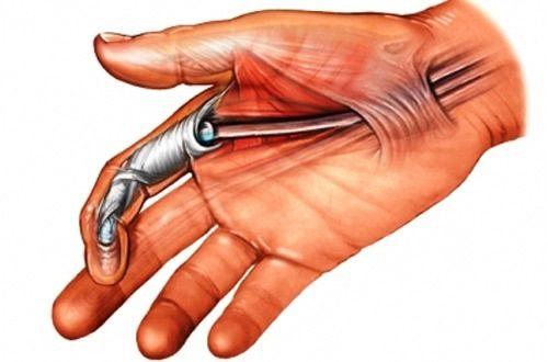 Minh hoạ ngón tay bị hội chứng ngón tay lò xo