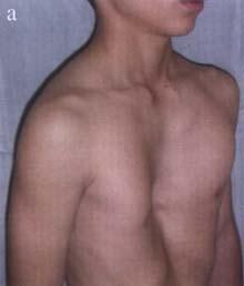 Duele el ovario la parte inferior del vientre y da en la espalda