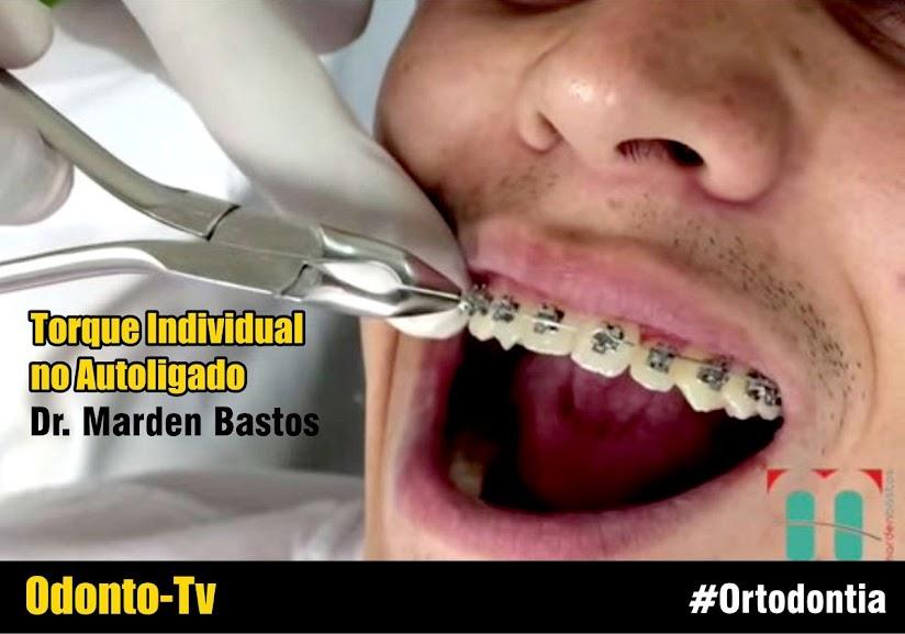 ortodontia-torque-individual