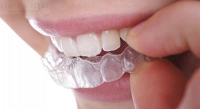 Tẩy trắng răng tại nhà bằng máng