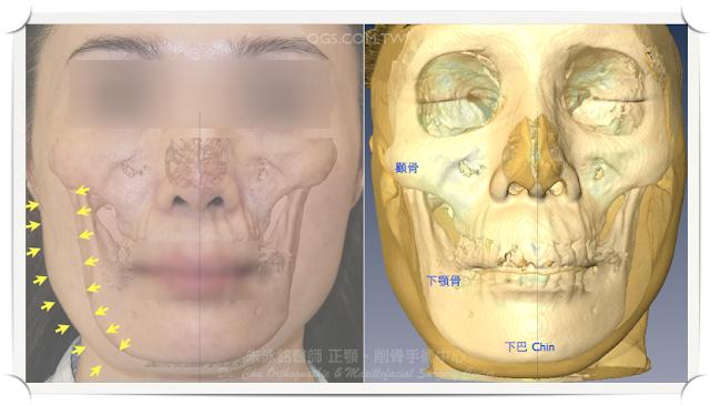 削骨手術,下顎骨雕塑,下巴,咀嚼肌,肉毒桿菌素,Botox