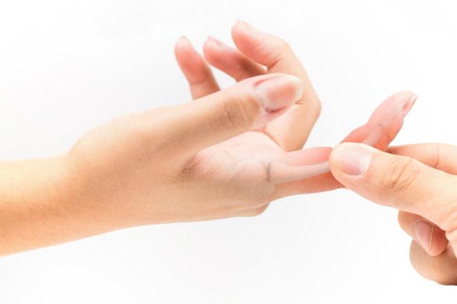 Phương pháp điều trị ngón ta lò xo tuỳ thuộc vào giai đoạn và tình trạng của bệnh