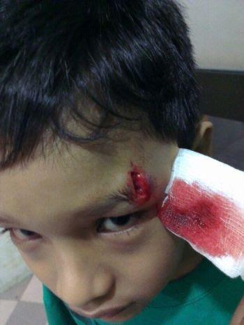 Anak Ifa Raziah Cedera Gaduh Kerana 'Patung Gusti'