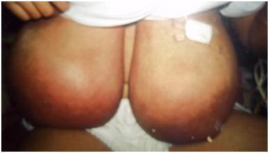 Virginal mammary hypertrophy