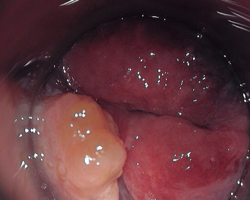 Fibroepithelial anal polyp