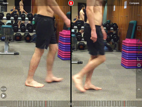 Gait analysis reduced dorsiflexion