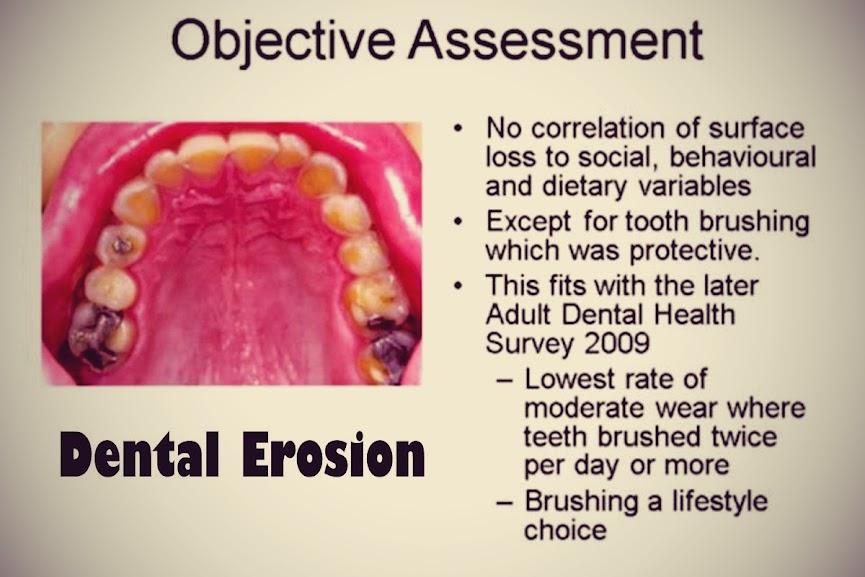 dental-erosion