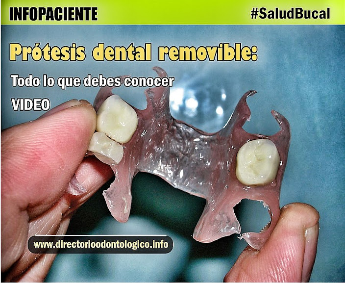 Protesis Dental Removible
