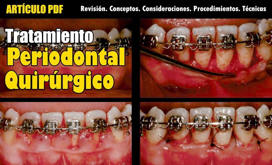 tratamiento-periodontal
