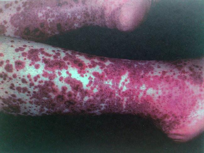 lesiones papulovesiculosas con base eritematosa en piernas