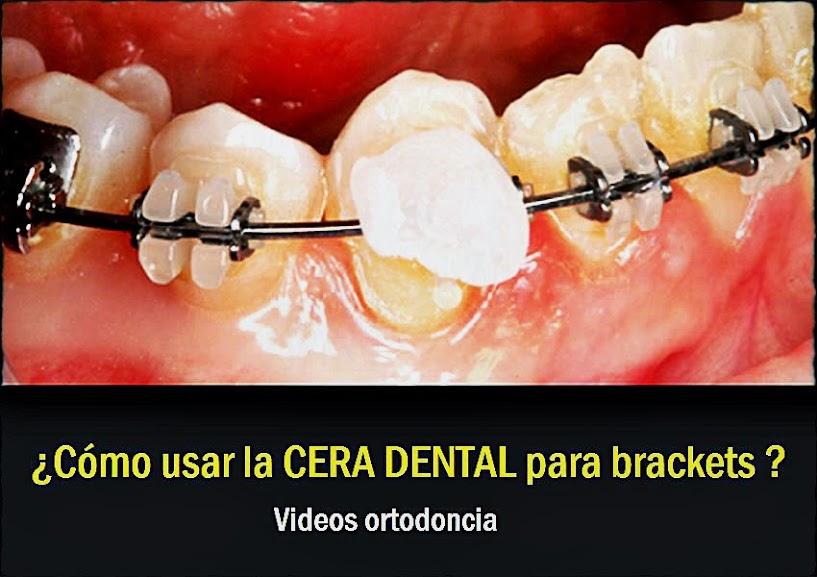 cera-dental