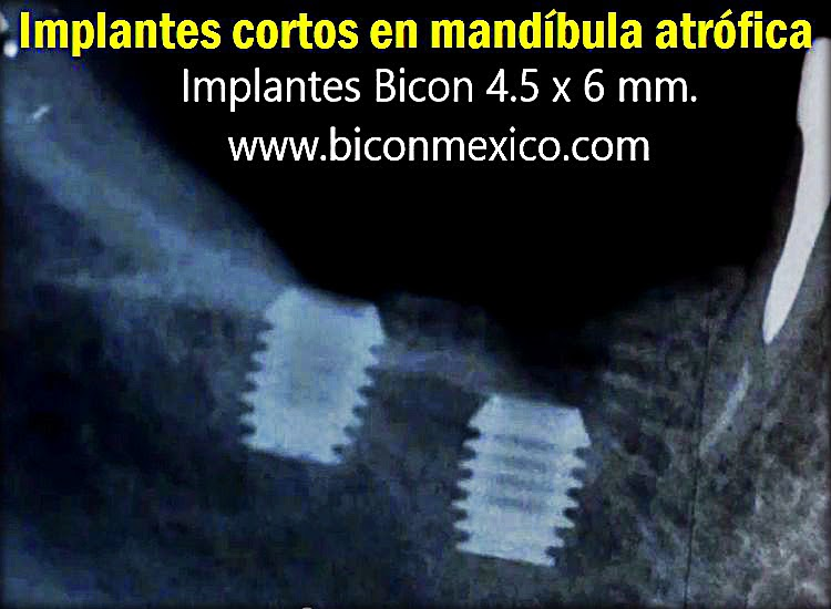 implantes-cortos