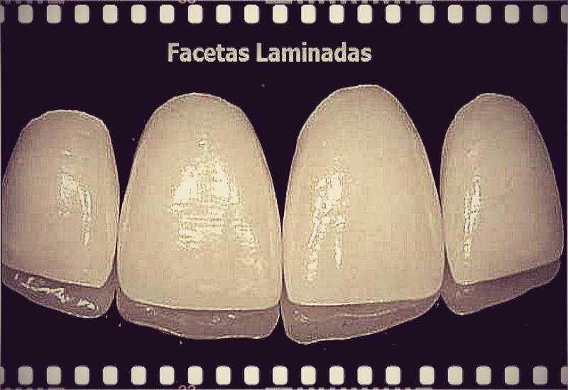 facetas-laminadas