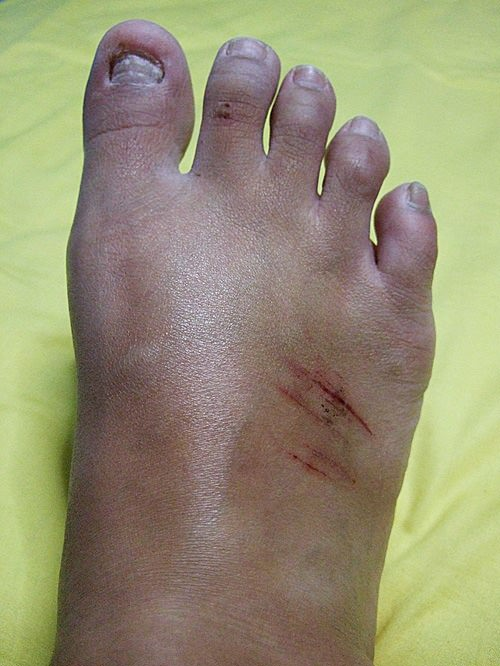 Cuts on my right foot