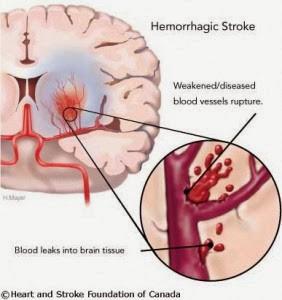 Obat Sakit  Stroke Aman & Tanpa Efek Samping