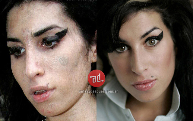 Amy Winehouse con acné