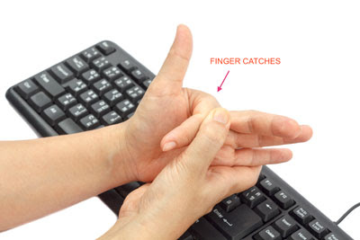 Những người có công việc sử dụng tay nhiều thường dễ bị ngón tay cò súng