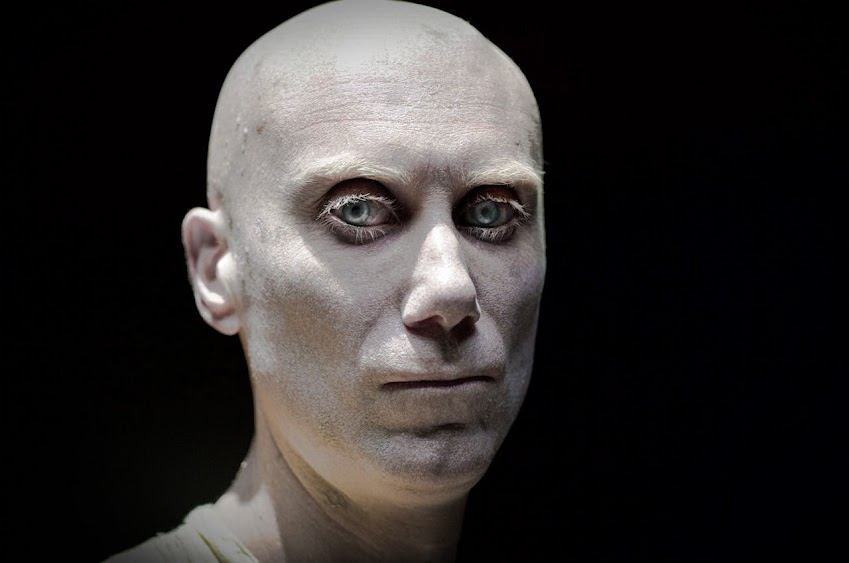 Stephen Merchant stars as Caliban in LOGAN.