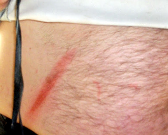 Bob's burned belly from rappelling