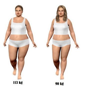 cirurgia redução de estomago