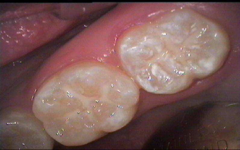Sim & Hooi Dental Centre: Fissure Sealants